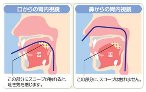 鏡 視 検査 内 胃